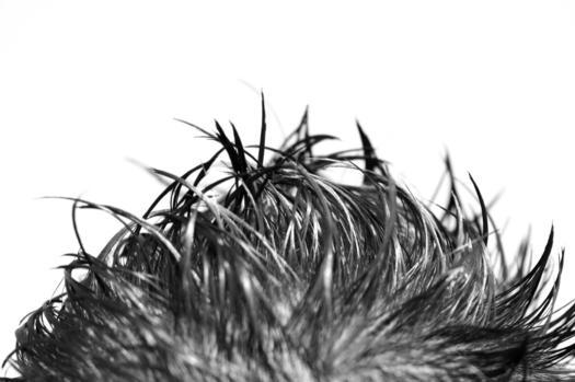 Пересадка волос москве цена